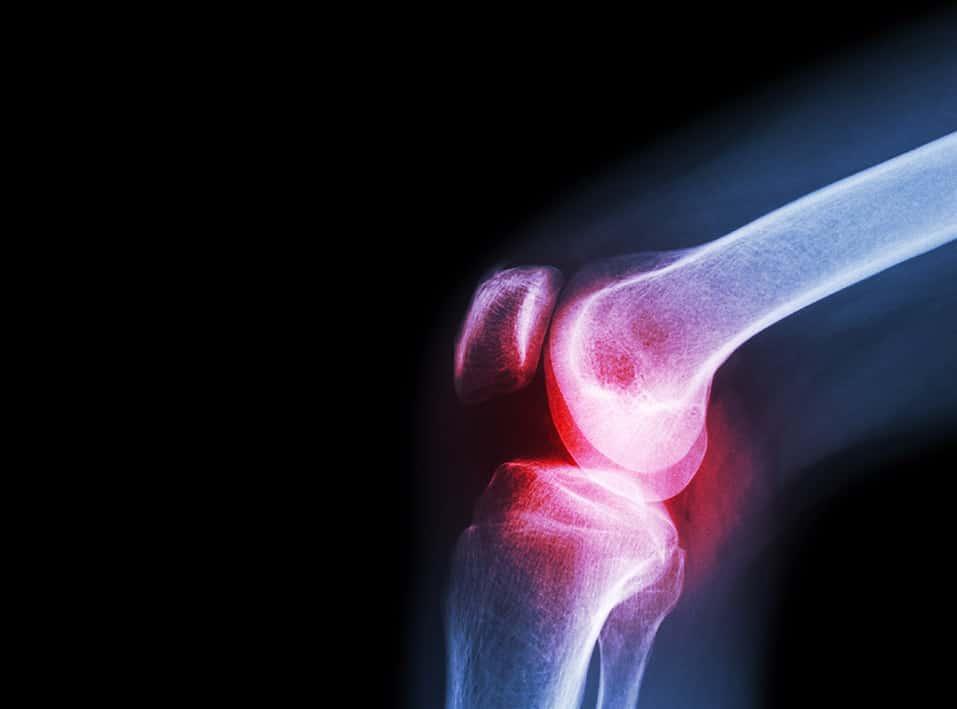 CBD et arthrose